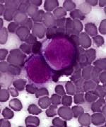 Quelle est la cause du cancer du sang?